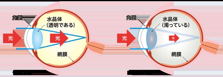 健康な眼と白内障の眼のイメージ図